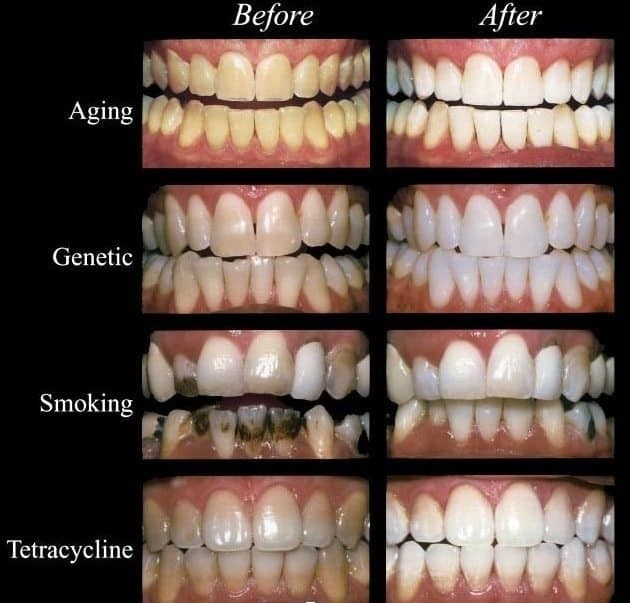 more teeth whitening