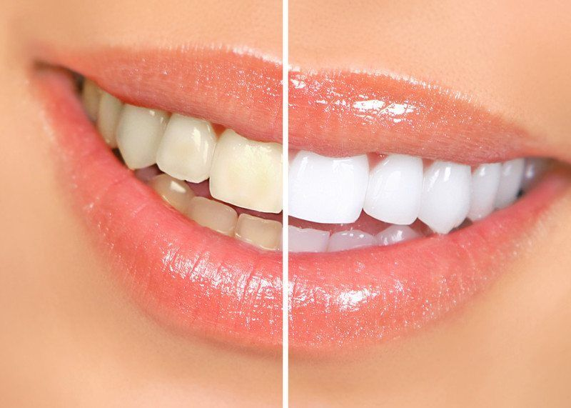 Teeth Whitening Simcoe