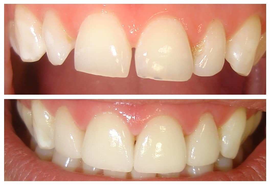 Before and after Simcoe dentist 2