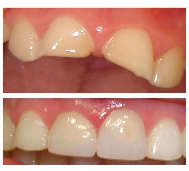 Before and after Simcoe dentist 3