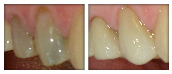 Before and after Simcoe dentist 4