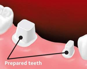 Fixed dental bridge 1